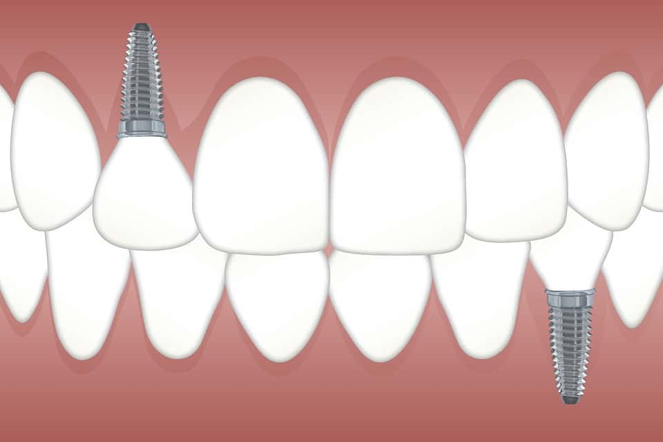 Single Tooth Implant Prices – Regional